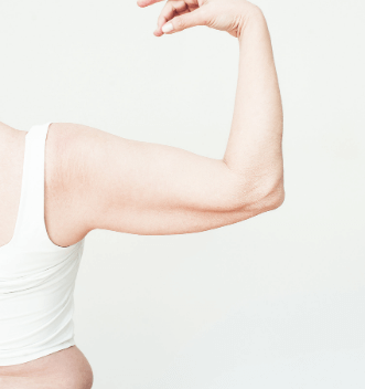 Brachioplasty or Arm Lift