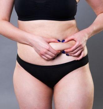 Woman before Liposuction