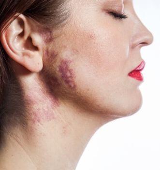 Port wine stain birthmark