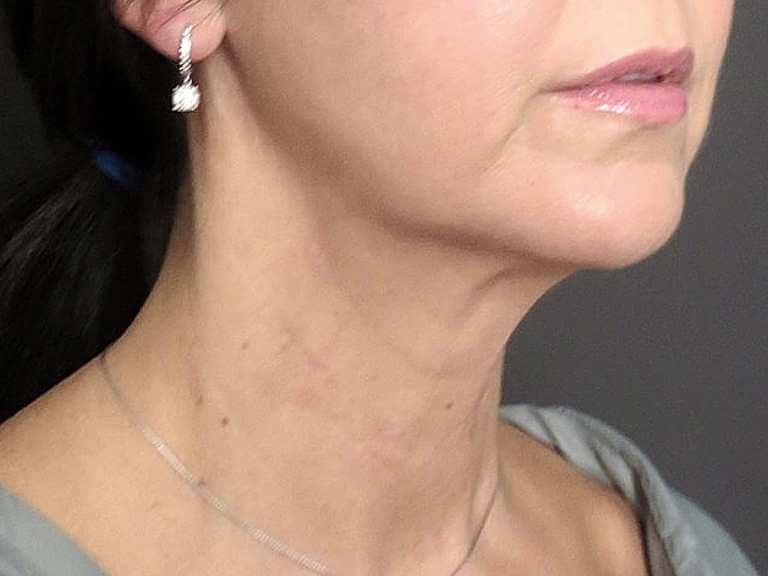 injecții de slăbire a maxilarului toronto 5 a de pierdere în greutate