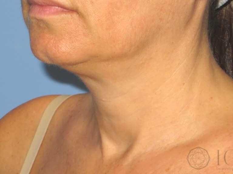 Implant Dentar: Pret implant si Coroana dentara, detalii complete - IVORY Dentfix