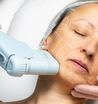 Non-invasive Skin Tightening