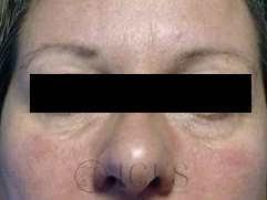 injecții de slăbire a maxilarului toronto cum să pierdeți în greutate rapid cu hgh