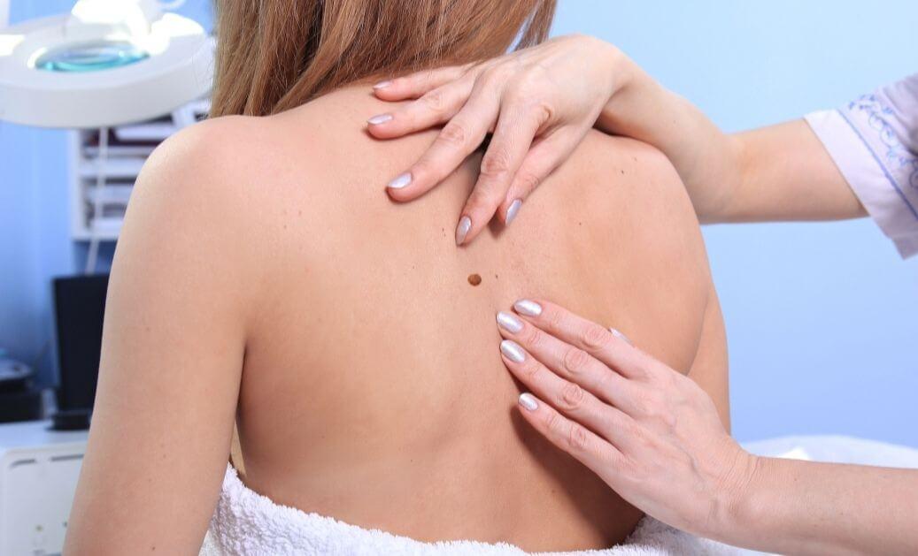 ICLS Skin Clean Up