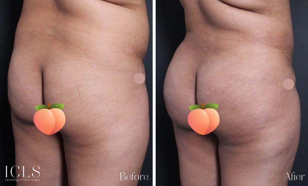 BBL bum lift ICLS Dermatology and Plastic Surgery
